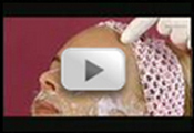 Mezo I Lezer - Lézeres bőrfiatalítás